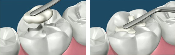 composite fillings gentle dental